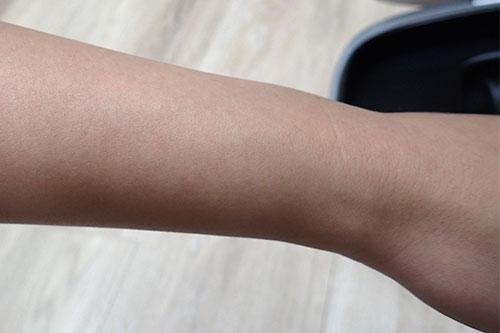 照射後の腕