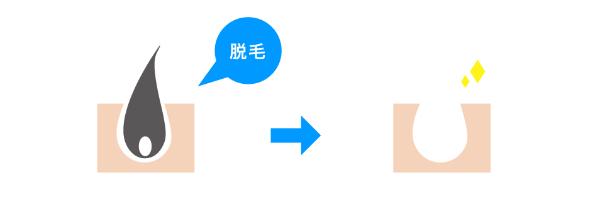 脱毛の説明図